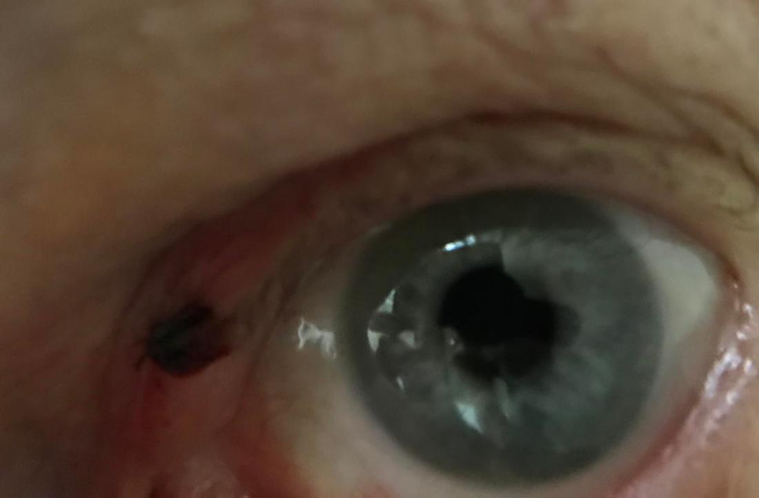 eye_divot